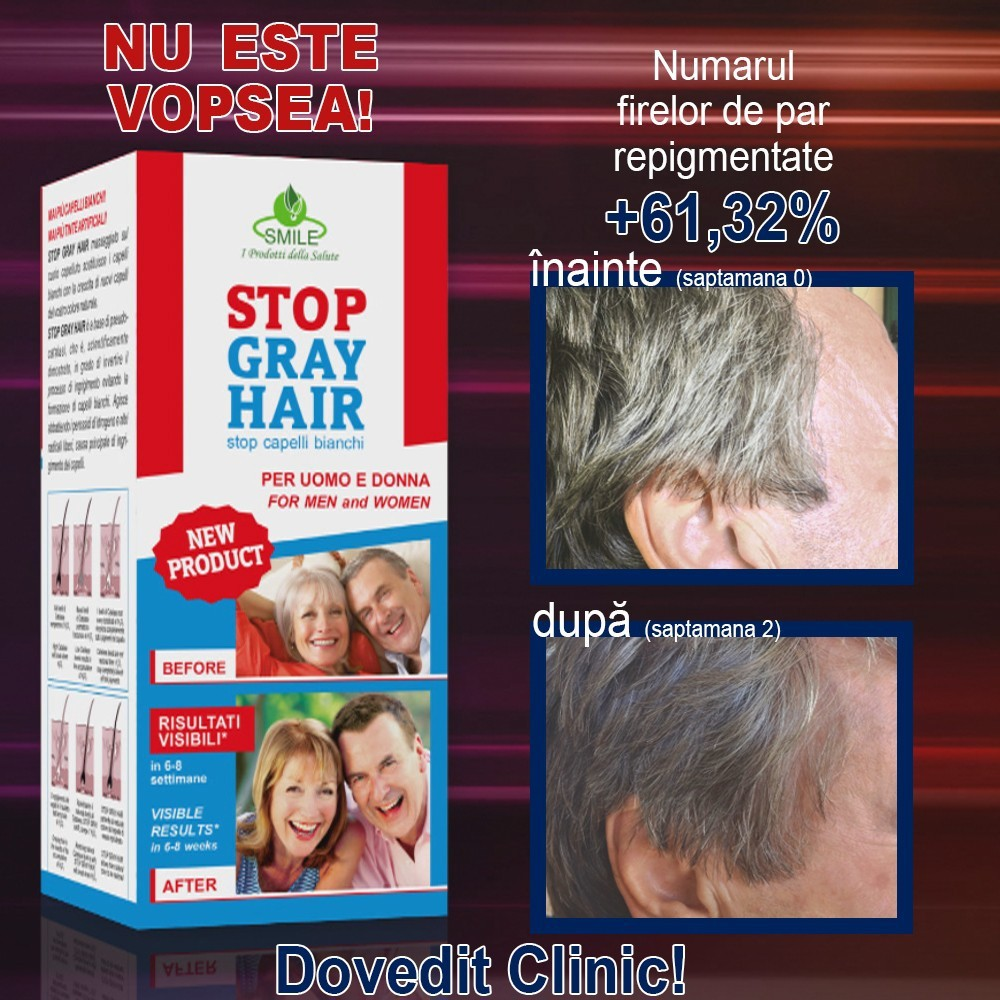 stop gray hair inainte si dupa 2